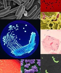 """BacteriaColleage"" by PeskyPlummer - Own work. Licensed under CC BY-SA 3.0 via Wikimedia Commons."